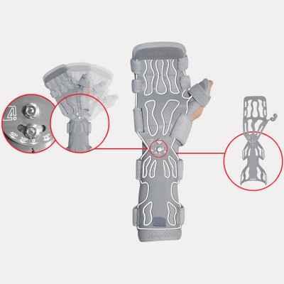 Νάρθηκας λειτουργικός άκρας χειρός  με μηχανισμό ωλένιας ή κερκιδικής απόκλισης